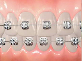 Image of Arch Wire Braces