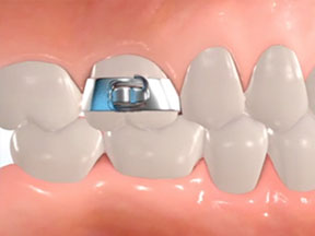 Image of Bands for Braces A hhin ring of metal fitted around a tooth and cemented in place